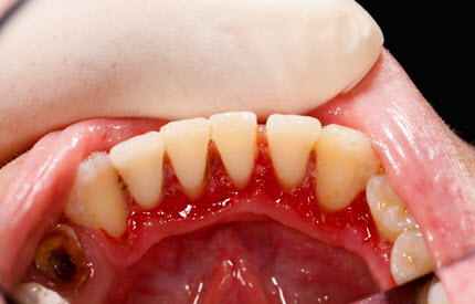 Gum Disease in Mouth