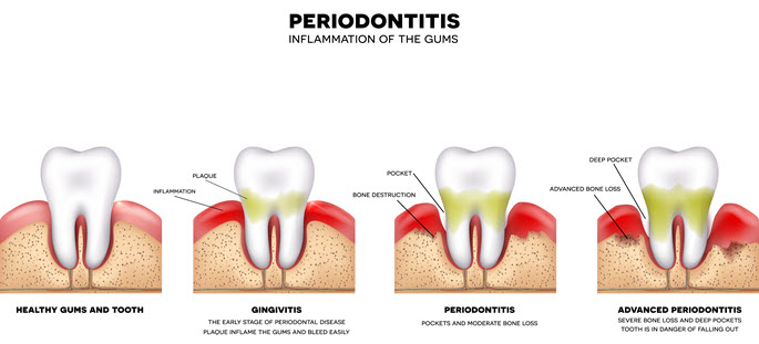 Periodontal Disease Images